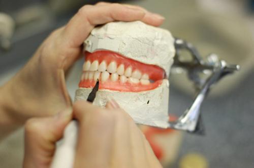 Создание протеза в лаборатории
