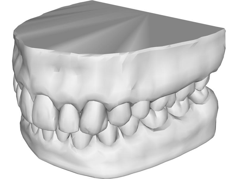 Модель челюсти